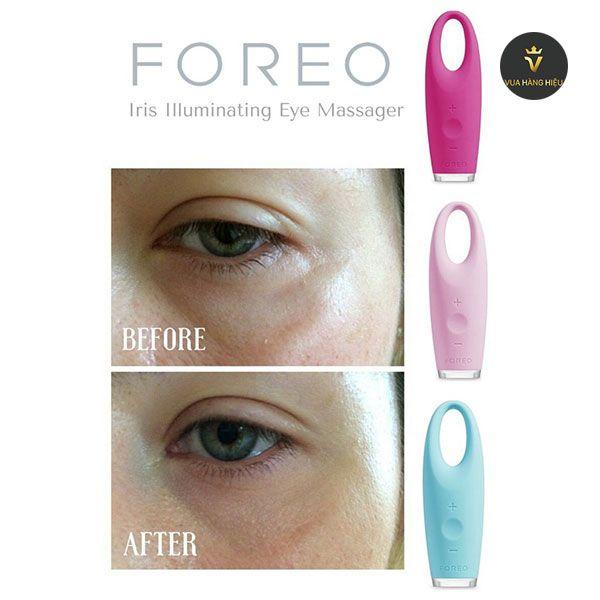 Cơ chế hoạt động của máy Massage mắt Foreo Iris